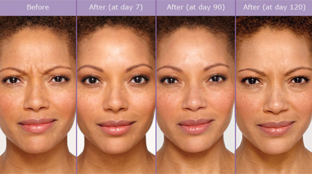 Botox-cosmetic-before-and-after-injections-results-sudbury-ontario-skin-medispa-ontario-frownlines-3-Courtesy-of-Botox