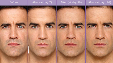 Botox-cosmetic-before-and-after-injections-results-sudbury-ontario-skin-medispa-ontario-frownlines-4-Courtesy-of-Botox