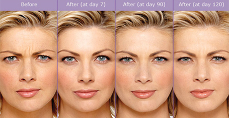 Botox-cosmetic-before-and-after-injections-results-sudbury-ontario-skin-medispa-ontario-frownlines-5-Courtesy-of-Botox