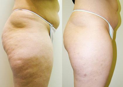 Cellulite-Treatment-in-Northern-Ontario-SKIN-MediSpa-Velashape-Courtesy-of-Syneron-Candela-1