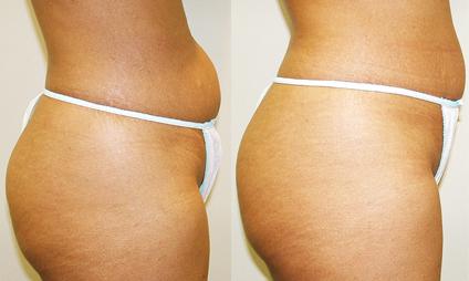 Cellulite-Treatment-in-Northern-Ontario-SKIN-MediSpa-Velashape-Courtesy-of-Syneron-Candela-2