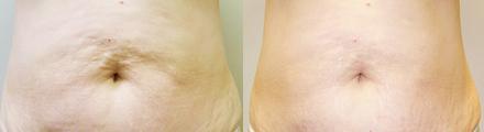 Cellulite-Treatment-in-Northern-Ontario-SKIN-MediSpa-Velashape-Courtesy-of-Syneron-Candela-3