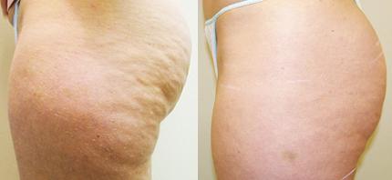Cellulite-Treatment-in-Northern-Ontario-SKIN-MediSpa-Velashape-Courtesy-of-Syneron-Candela-4