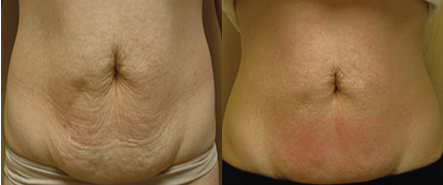 Cellulite-Treatment-in-Northern-Ontario-SKIN-MediSpa-Velashape-Courtesy-of-Syneron-Candela-6
