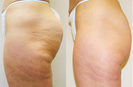 Cellulite-Treatment-in-Northern-Ontario-SKIN-MediSpa-Velashape-Courtesy-of-Syneron-Candela-7