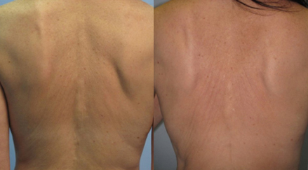 Fractora-Firm-Plus-skin-tightening-anti-aging-sudbury-ontario-skin-medispa-Courtesy-of-Invasix-2