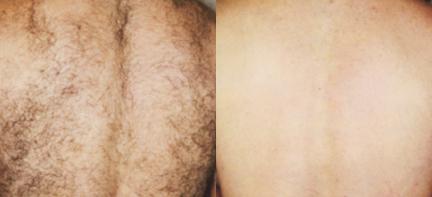 GentleMax-Hair-Removal-sudbury-ontario-Courtesy-of-Syneron-Candela