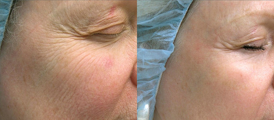 Icon-before-and-after-skin-resurfacing-laser-1