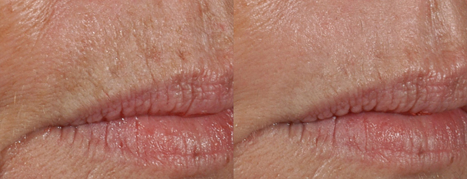 Icon-before-and-after-skin-resurfacing-laser-2