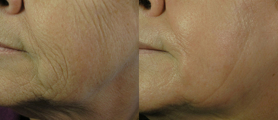 Icon-before-and-after-skin-resurfacing-laser-3