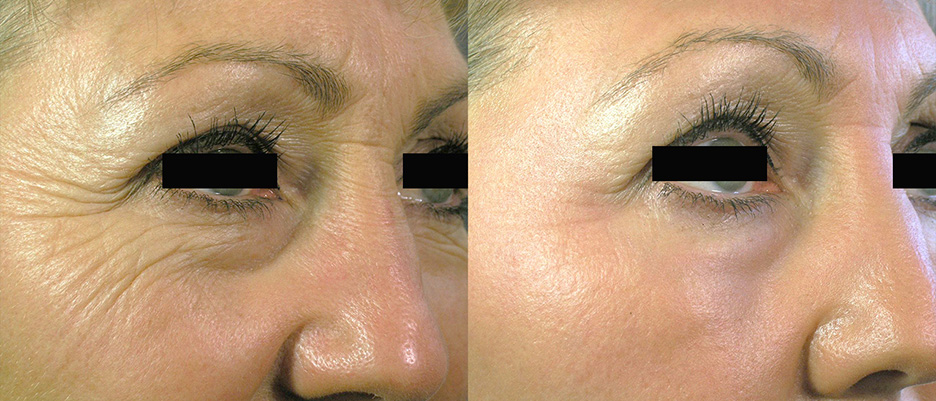 Icon-before-and-after-skin-resurfacing-laser-4