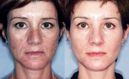 Triniti-3-Courtesy-of-SyneronUnwanted-Pigmentation-Brown-and-Red-Spots-Treatment-in-Sudbury-Ontario-skin-medispa-2