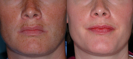 Unwanted-Pigmentation-Brown-and-Red-Spots-Treatment-in-Sudbury-Ontario-skin-medispa-1