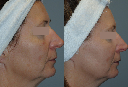 Unwanted-Pigmentation-Brown-and-Red-Spots-Treatment-in-Sudbury-Ontario-skin-medispa-2