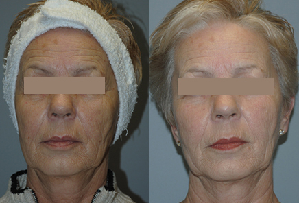 Unwanted-Pigmentation-Brown-and-Red-Spots-Treatment-in-Sudbury-Ontario-skin-medispa-3
