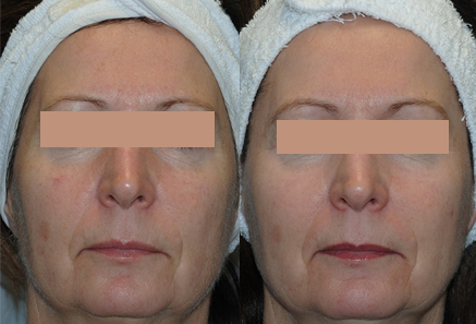 Unwanted-Pigmentation-Brown-and-Red-Spots-Treatment-in-Sudbury-Ontario-skin-medispa-4