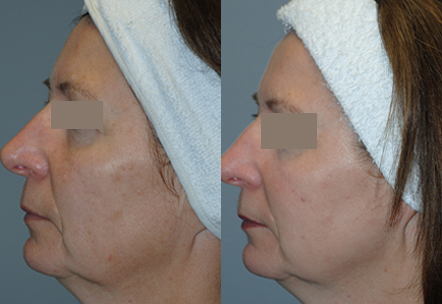 Unwanted-Pigmentation-Brown-and-Red-Spots-Treatment-in-Sudbury-Ontario-skin-medispa-5