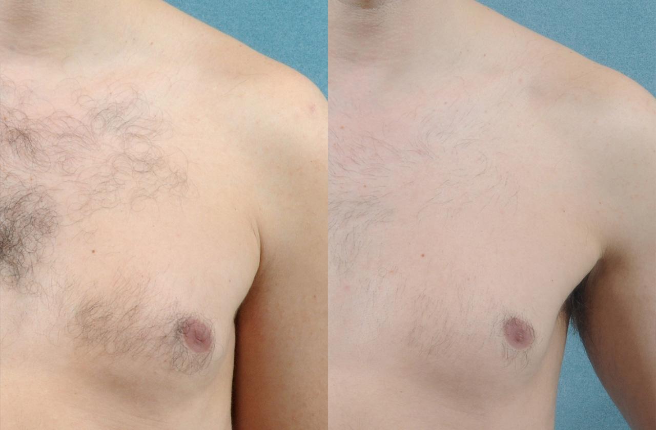 Vectus-Hair-removal-before-and-after-sudbury-ontario-skin-medispa-2