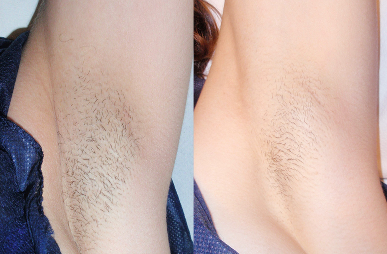 Vectus-Hair-removal-before-and-after-sudbury-ontario-skin-medispa-3