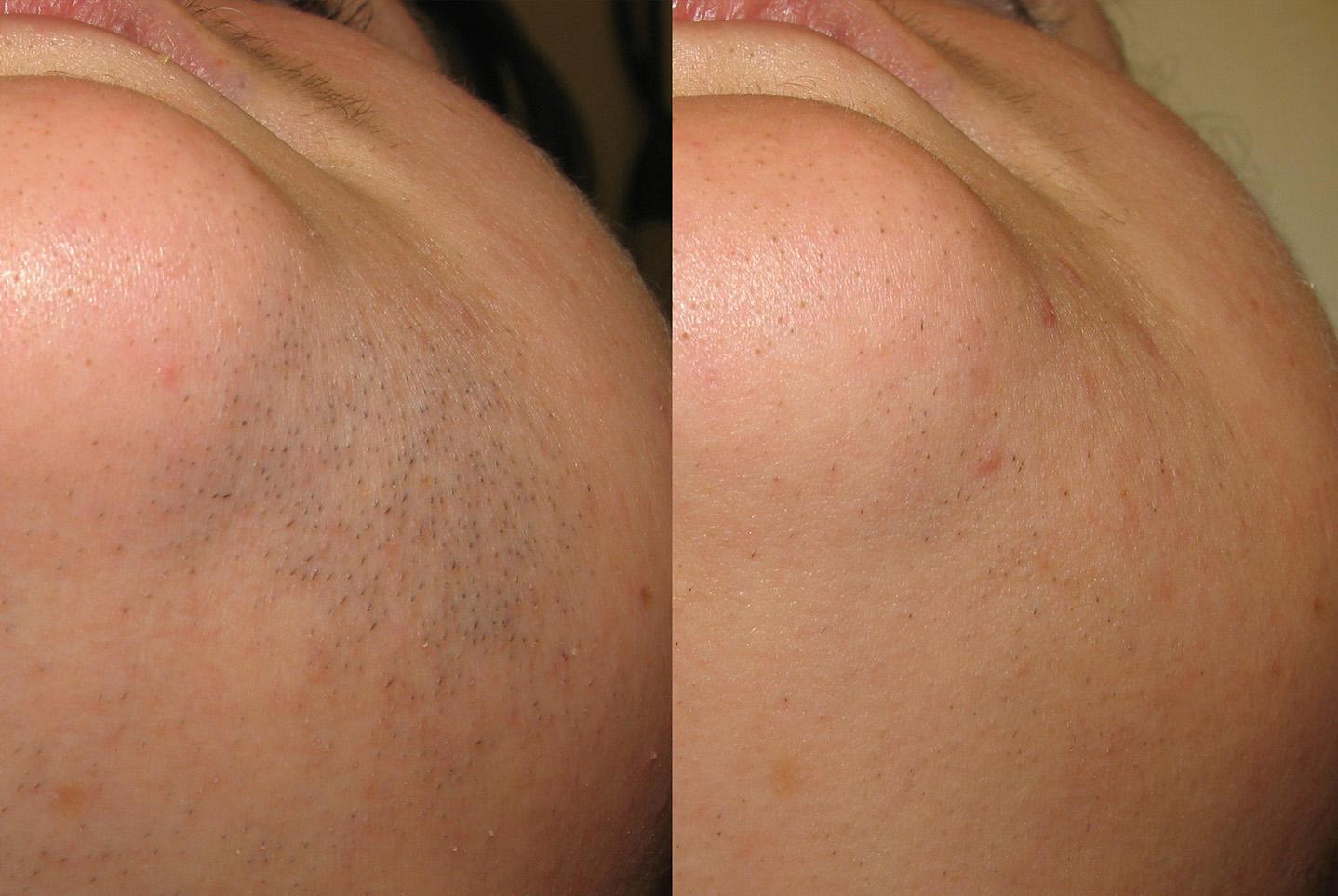 Vectus-Hair-removal-before-and-after-sudbury-ontario-skin-medispa-4