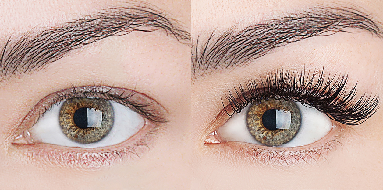 xtreme-lashes-before-and-after-jo-mousselli-eyelash-extensions-eyelashes-sudbury-ontario-skin-medispa-1