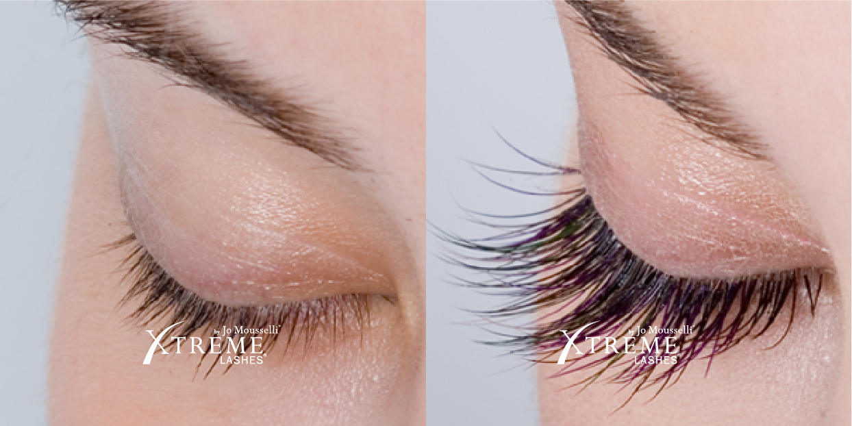 xtreme-lashes-before-and-after-jo-mousselli-eyelash-extensions-eyelashes-sudbury-ontario-skin-medispa-3