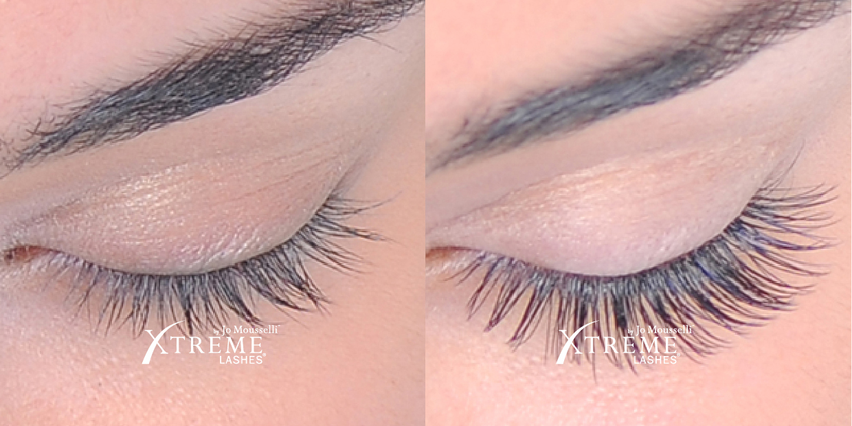 xtreme-lashes-before-and-after-jo-mousselli-eyelash-extensions-eyelashes-sudbury-ontario-skin-medispa-4