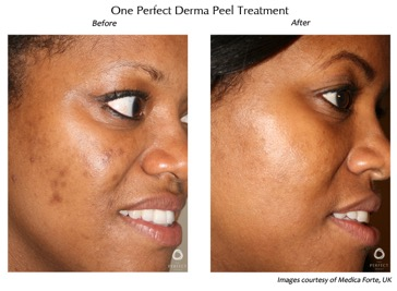 skinmedispa derma peel before and after