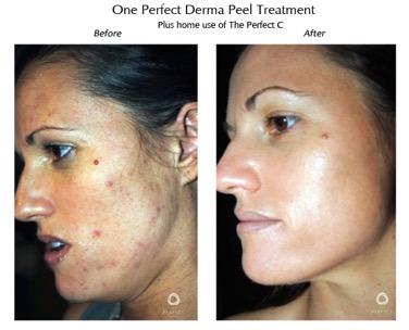 SkinMediSpa_Derma Peel