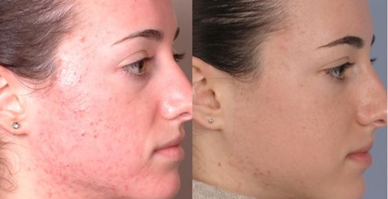 SkinmediSpa_Dermalinfusion_results