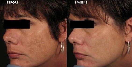 SkinmediSpa_dermalinfusion_results_2