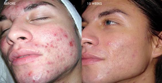 SkinmediSpa_dermalinfusion_results_3
