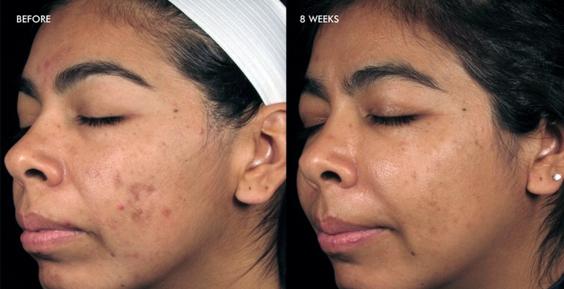 SkinmediSpa_dermalinfusion_results_4